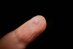 Πυογόνο κοκκίωμα-κρυοθεραπεία