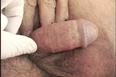 Κονδύλώματα πέους