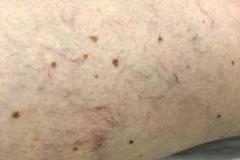 Θεραπεία αγγείων ποδιών-Laser Lyra