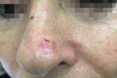 Επιθηλίωμα μεγάλο ακρορίνου-κρυοθεραπεία