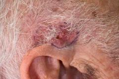 Μεγάλο επιθηλίωμα κροτάφου-κρυοθεραπεία