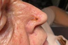 Επιθηλίωμα ακρορινικού-κρυοθεραπεία