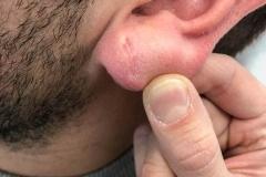 Τρύπα στο λοβό του αυτιού-Δερματοχειρουργική