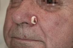 Επιθηλίωμα στο πτερύγιο μύτης-κρυοθεραπεία