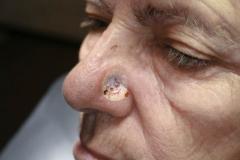 Ελκωτικό επιθήλιωμα πτερυγίου μύτης-κρυοθεραπεία
